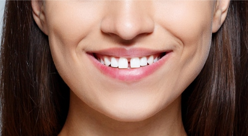 The ultimate solution for teeth spaces