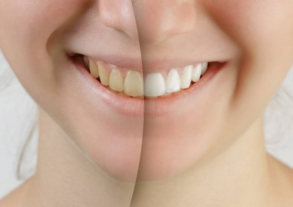 Caffeine the most common causes of yellow teeth
