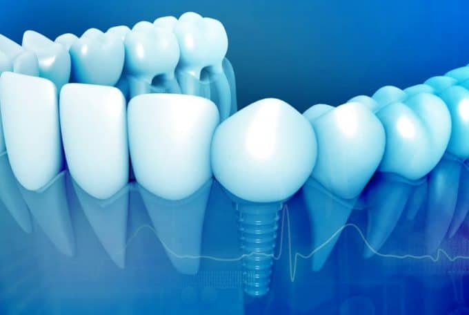 The history of dental implant