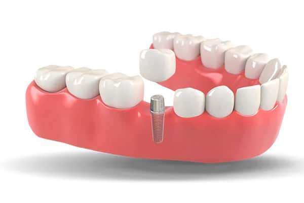 Top 5 questions about dental implants