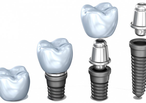 How dental implants are performed in Shiny White centers