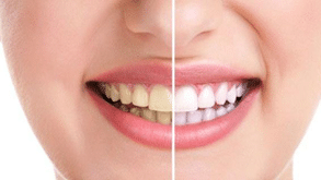 9 Reasons for yellow Stains on Teeth