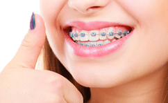 Do Orthodontics Help with Crowded Teeth?