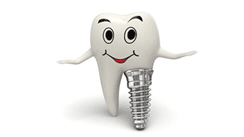 What are immediate dental implants! - Shiny White Dental Implant and Cosmetic Dentistry