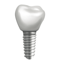 How are dental implants done | Are dental implants painful?