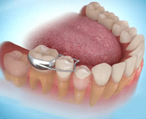Dental space savers for your child